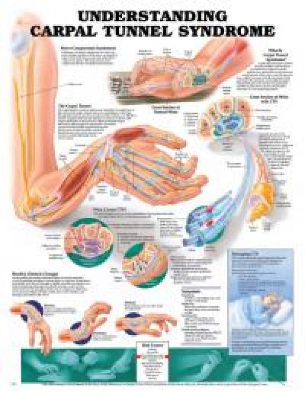 Carpal Tunnel Syndrome Chart