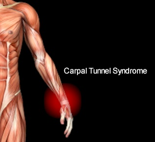 carpal-tunnel-syndrome-maryland-1